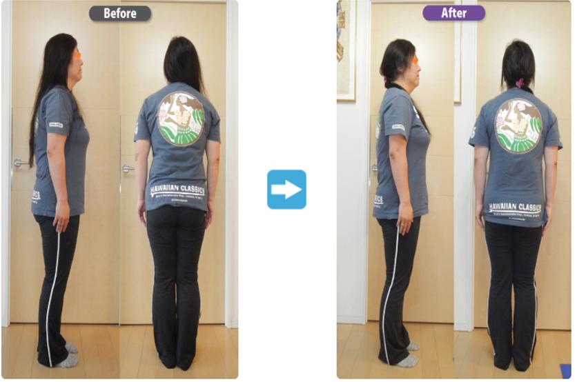 腰痛・膝痛のビフォーアフター[実例]